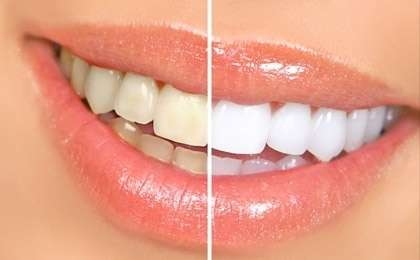 Tooth Bleaching